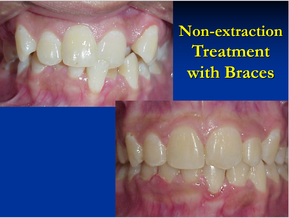 Non-Extraction Treatment with Braces - 2
