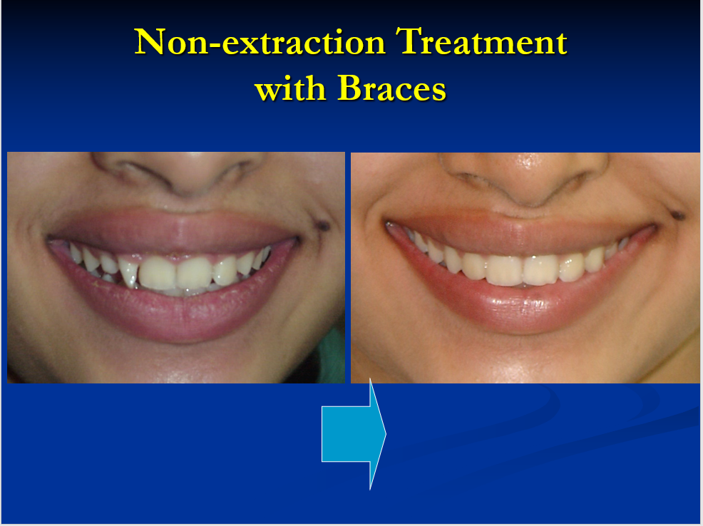 Non-Extraction Treatment with Braces - 3