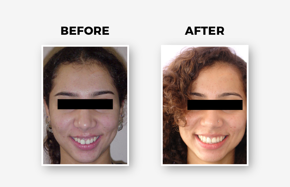 Non-extraction Treatment with Braces