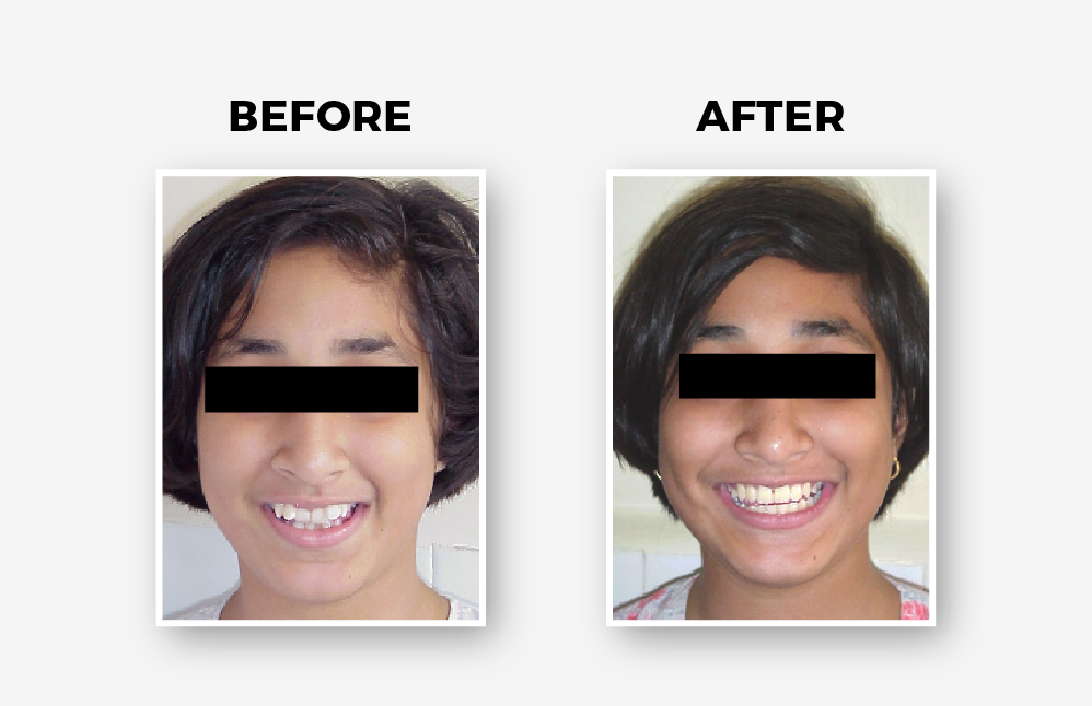 Post 14 & 24 Extraction Treatment
